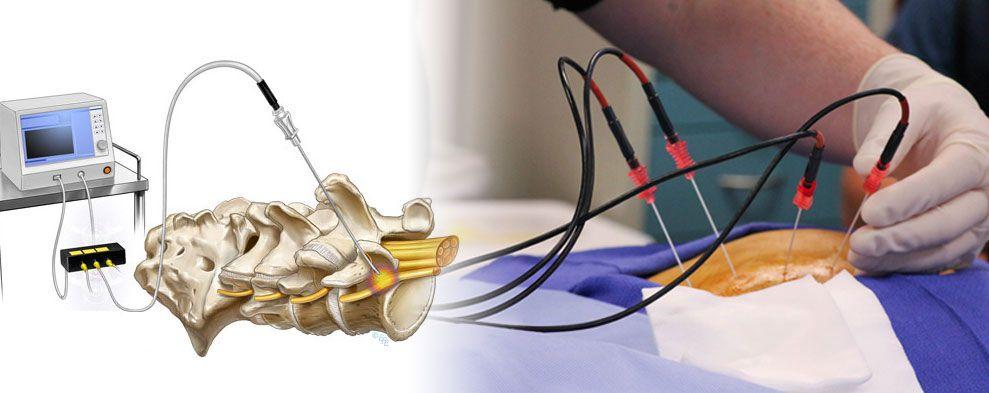simulazione di un trattamento tramite termorizotomia a radiofrequenza per sindrome dolorosa osteoartrosica lombare.