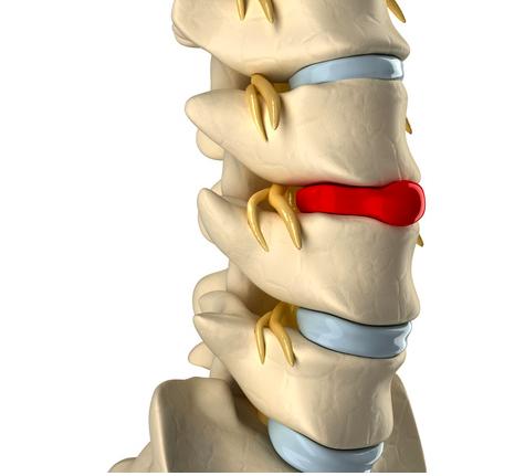 Come-migliorare-lernia-del-disco-con-la-ginnastica-posturale